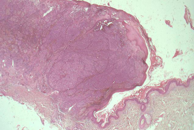 Histo Makro Pathologie Basic