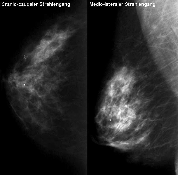fibrose in der brust